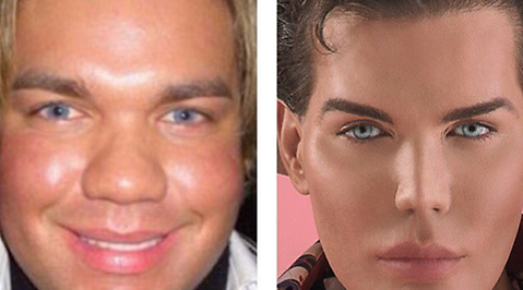 Rodrigo Alves, Operationer, Ken, Barbie